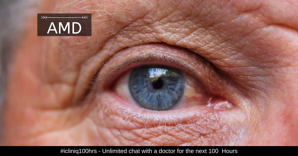 Age Related Macular Degeneration Amd Types Stages Causes Symptoms Treatment