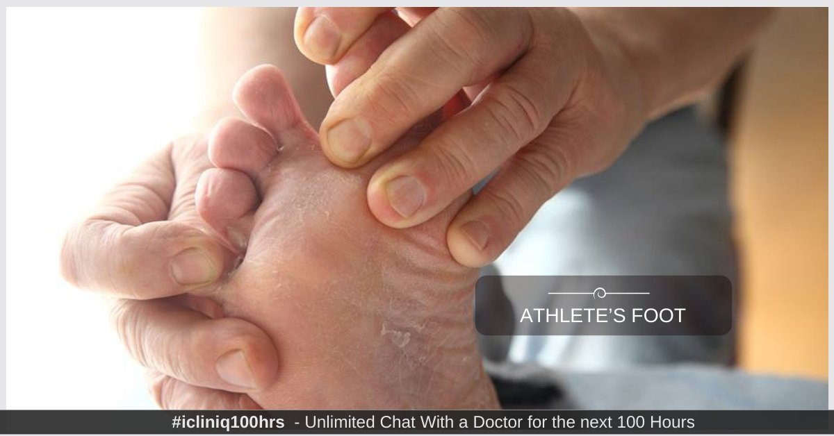 Athlete's Foot - Causes, Risk factors, Symptoms, Diagnosis, Treatment, and Prevention