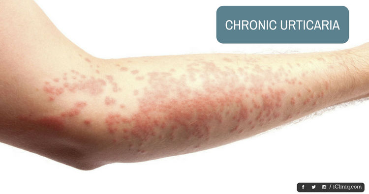 Autologous Serum Therapy - a Newer Approach in Management of Chronic Urticaria