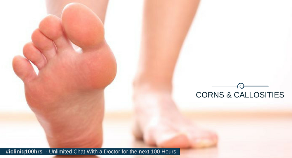 Corns Callosities And Plantar Warts Diagnosis Treatments