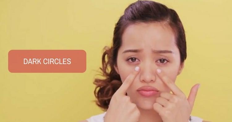 Dark Circles - a Common Cosmetic Concern