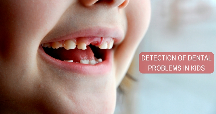 Early Detection of Dental Problems in Kids