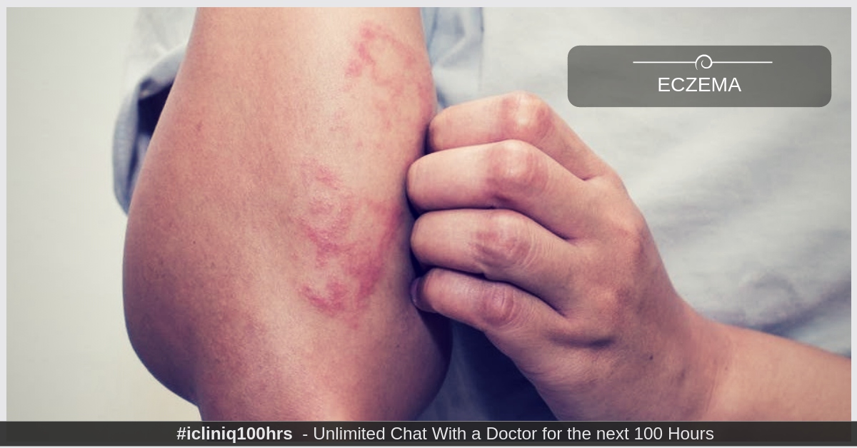 Eczema - Treatment and Prevention