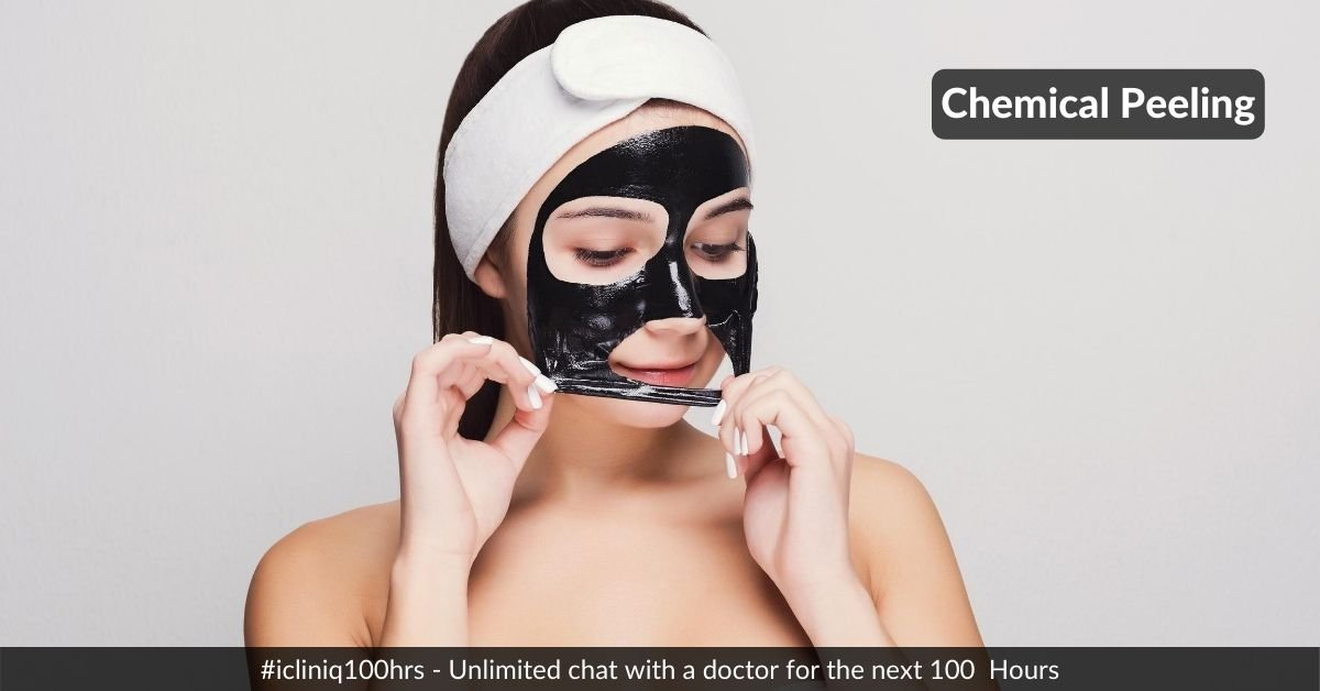 General Concepts of Chemical Peeling