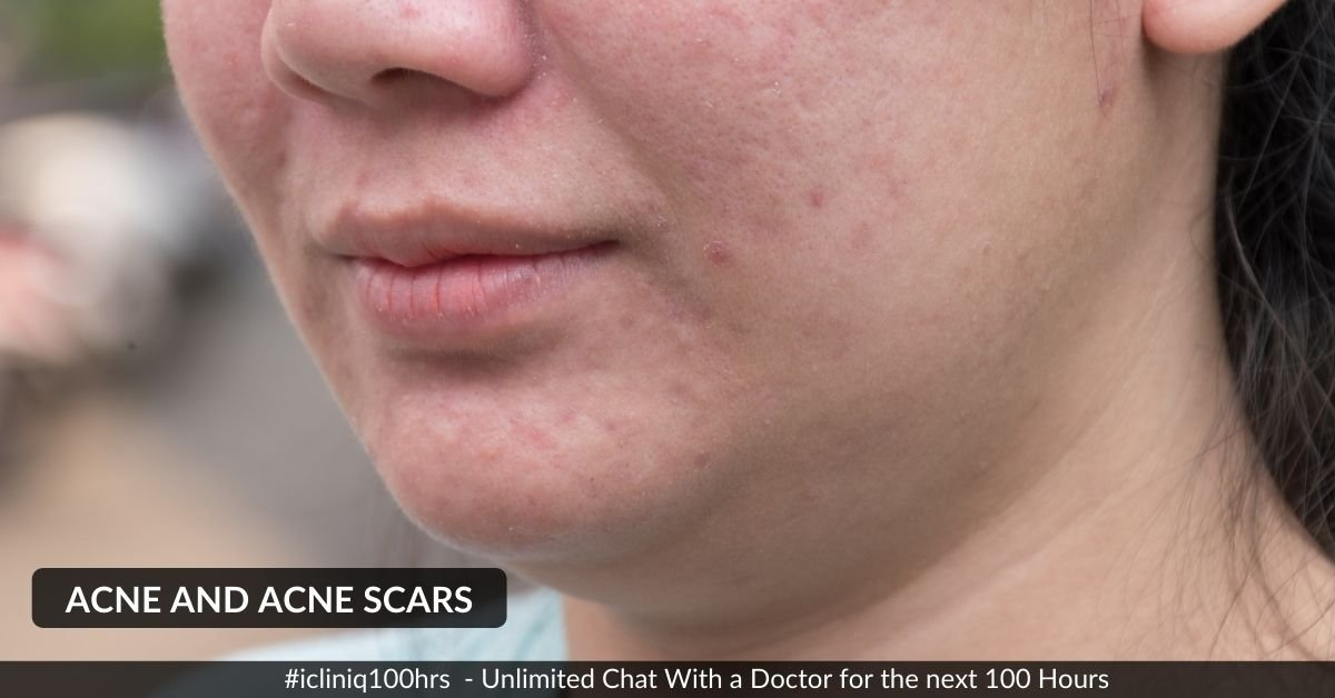 Homeopathic Medicines for Acne and Acne Scars