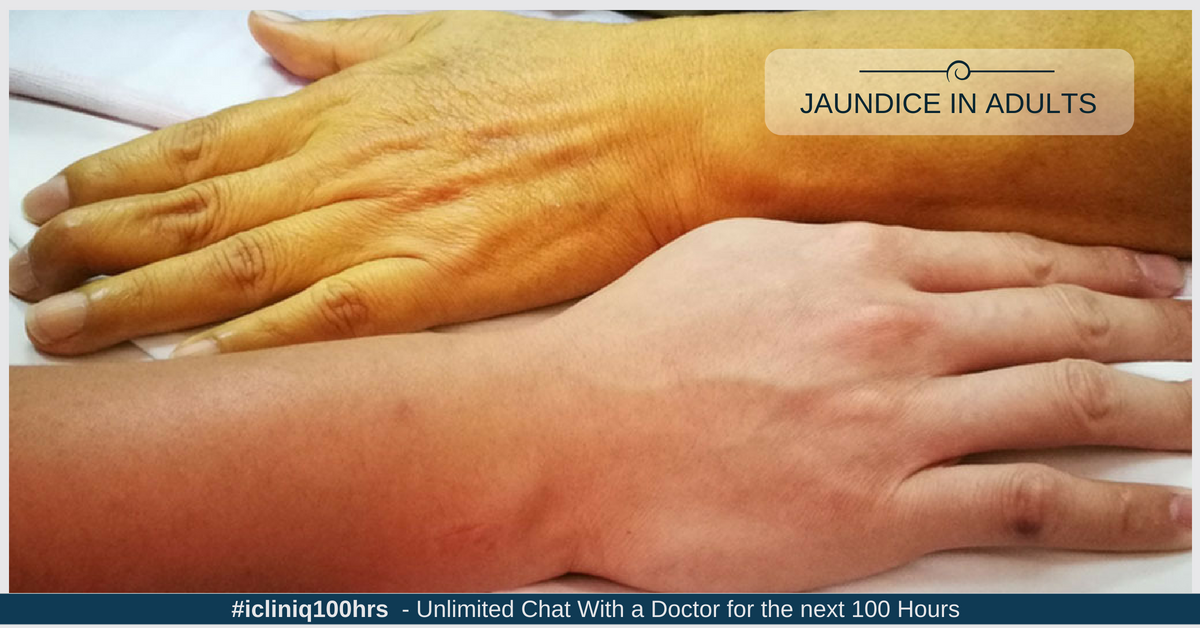Jaundice in Adults: An Overview