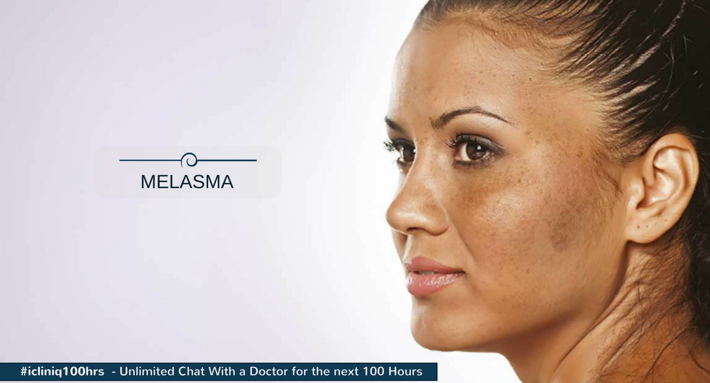 Melasma (Dark Patches on Face): How to Get Rid of Them