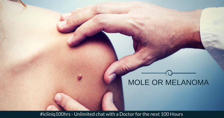 Mole or Melanoma: When to Worry?