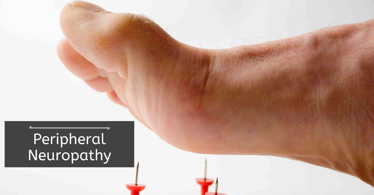 Peripheral Neuropathy – Types, Symptoms, Causes, Risk Factors, and Treatment