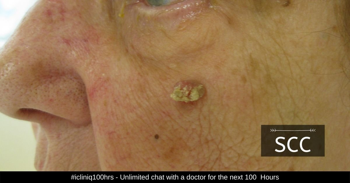 Squamous Cell Carcinoma (SCC) - Symptoms, Causes, Diagnosis, and Treatment