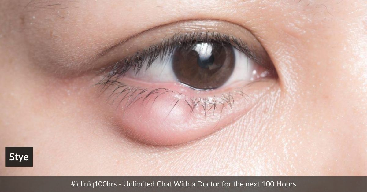 Stye - How to Avoid and Its Treatment Options
