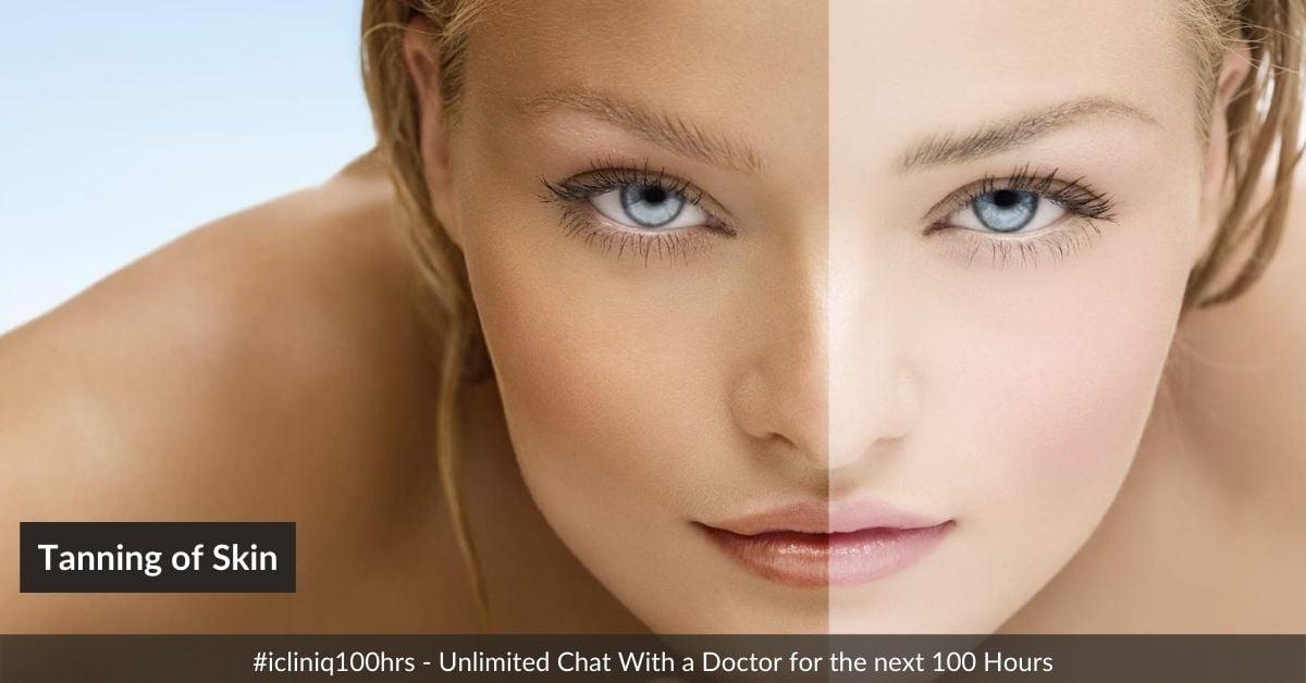 Tanning of Skin