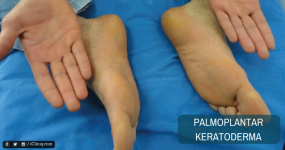 Palmoplantar Keratoderma - Causes and Treatment