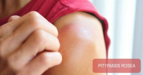 Pityriasis Rosea, a Common Papulosquamous Disorder