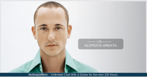 Hair Loss (Alopecia Areata) Cure Through Homoeopathy