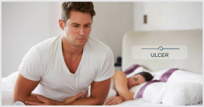 Common Doubts For Any Ulcer Patients