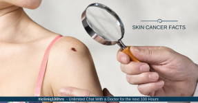 Skin Cancer Facts: What You Need to Know