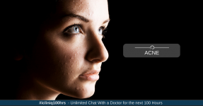 Acne - Causes, Types, Home Remedies and Treatment Strategy