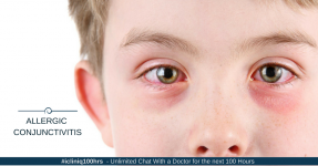 Allergic Conjunctivitis and Its Treatment Options