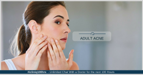 Adult Acne: A Common Problem