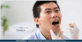 When Should Tonsils Be Removed in Adults?