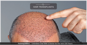 Everything You Need to Know About Hair Transplants