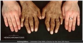 Iron Overload (Hemochromatosis)