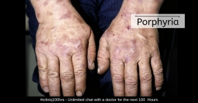 Porphyria - Types, Symptoms, Causes, Diagnosis, Treatment and Prevention