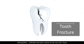 Tooth Fracture - Types, Causes, Symptoms, Diagnosis, and Treatment