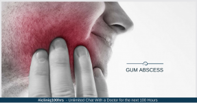 All About Gum Abscess -  Causes, Symptoms, Treatments, and Prevention