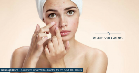 Skin Care Tips to Avoid Pimples