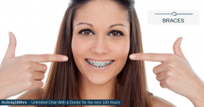 When Do You Need Braces??