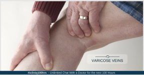 Varicose Veins - Causes, Prevention, Symptoms, and Treatments