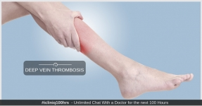 Deep Vein Thrombosis - Causes, Prevention, Symptoms and Treatments