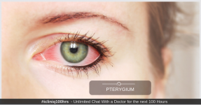 Pterygium (Surfer's eye) - causes, prevention and treatment options