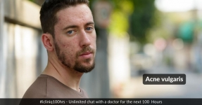 Acne vulgaris, a Social Problem.