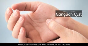 Ganglion Cyst - Symptoms, Causes, Diagnosis, and Treatment