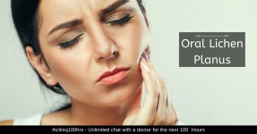 Oral Lichen Planus - Causes, Symptoms, Diagnosis, and Treatment
