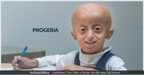 Progeria - Types, Symptoms, Causes, Diagnosis, and Treatment