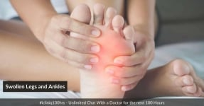 Swollen Legs and Ankles - Causes, Diagnosis, and Treatment