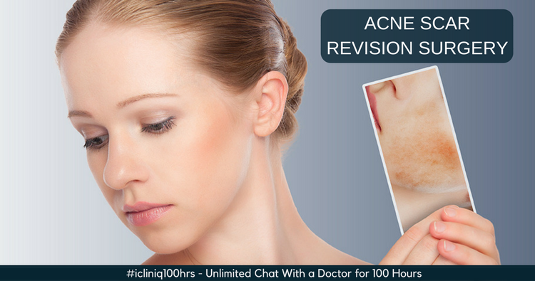 Types and Techniques of Acne Scar Revision Surgery