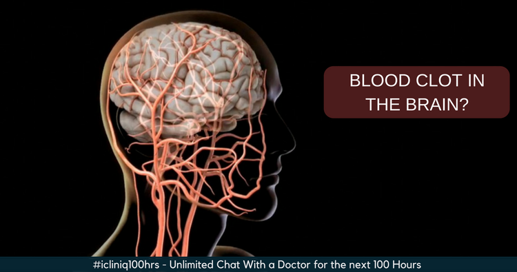 Can a blood clot in the brain be removed by medicines alone?