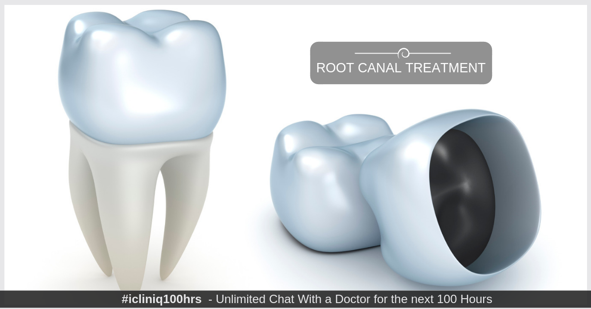 Do I compulsorily need a crown after root canal treatment?
