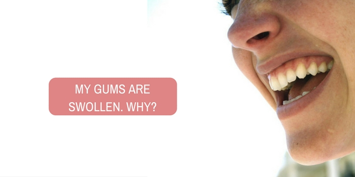 Following RCT and crown, my gums are swollen. Why?