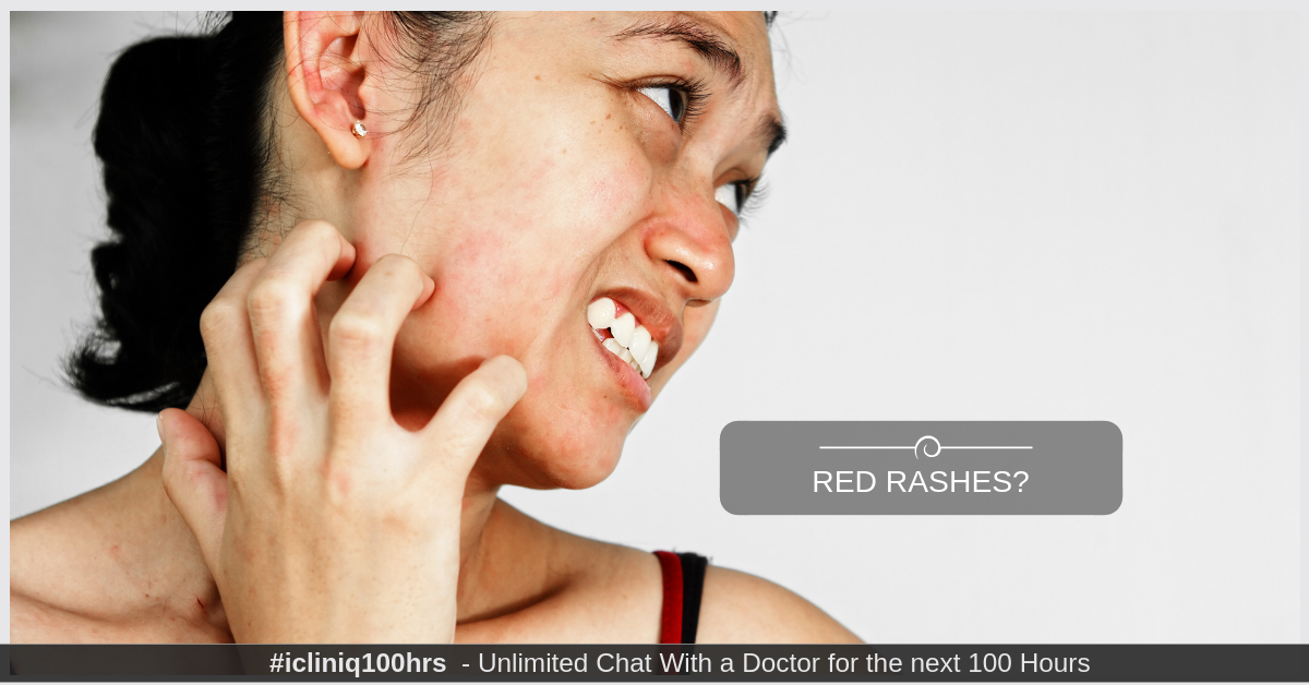 How can red rashes on face that increases on eating spicy food be managed?