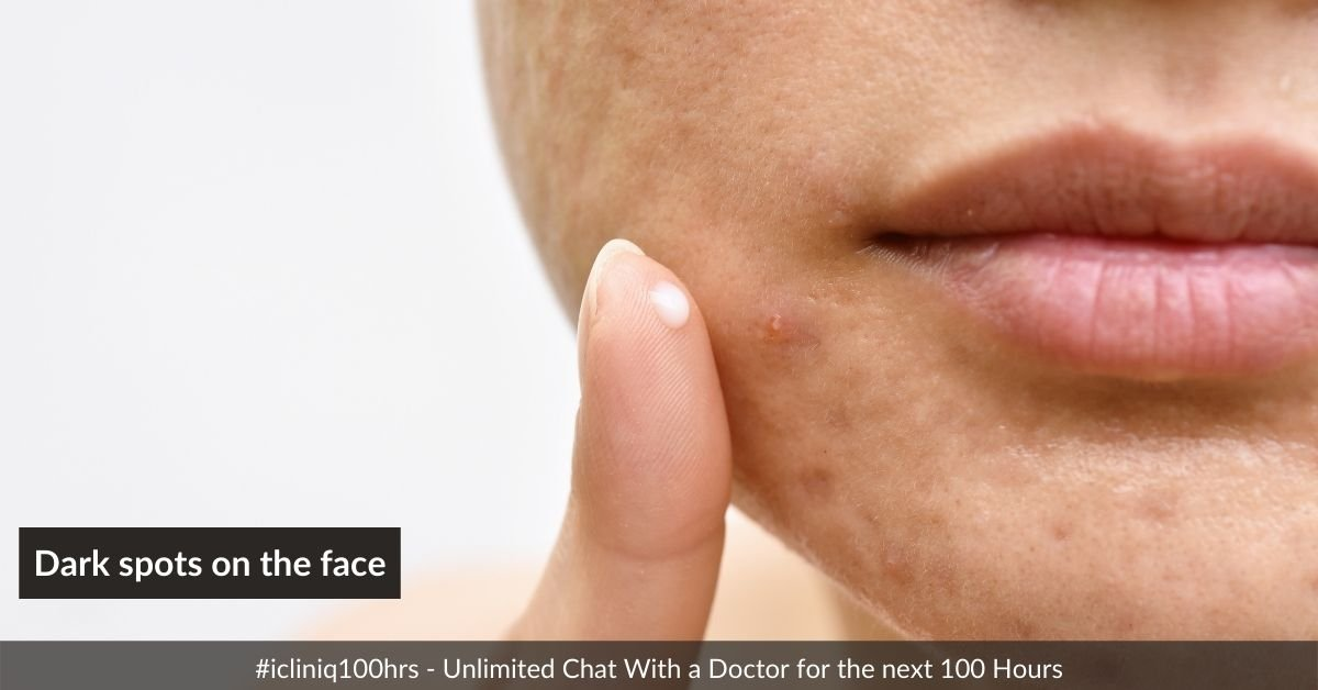 How long will it take to heal the dark spots on the face?