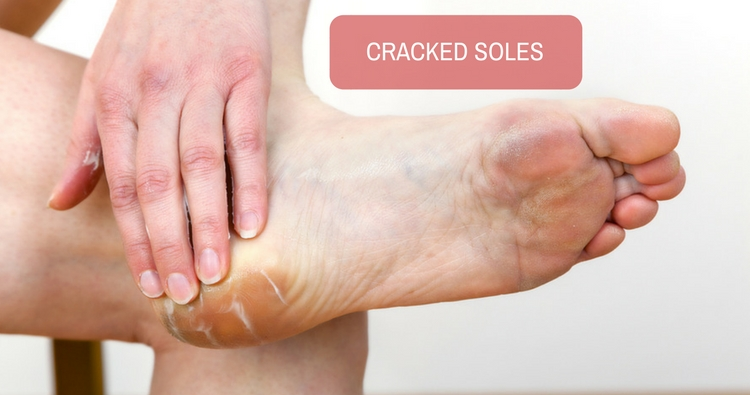 How to heal dry and cracked soles through ayurveda?