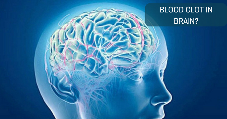 How to recover from blood clot in brain?