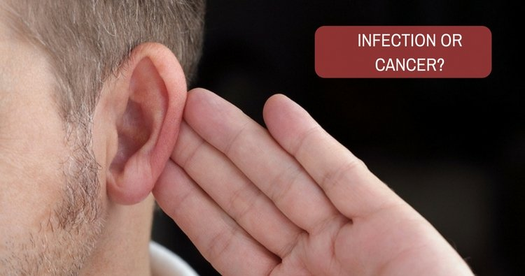 I have a soft lump behind my ear. Could it be an infection or cancer?