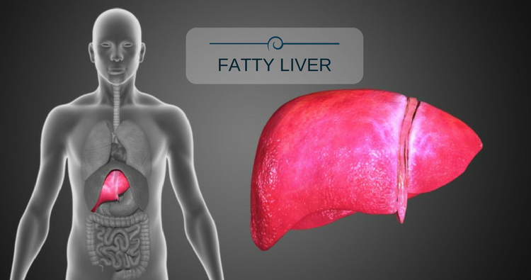 I have high cholesterol and a fatty liver. Please suggest a diet chart.